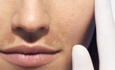 ImgArticlePush_易敏感皮膚,複雜的問題