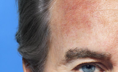 ImgArticlePush_男性皮膚:生理上與女性皮膚不同